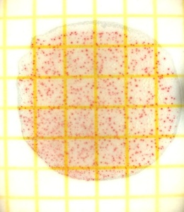 Bakterien in Petrischale (c) Sebastian Karkus / pixelio.de